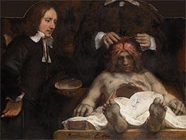 Rembrandt | The Anatomy Lesson of Dr Joan Deyman, 1656 | Giclée Canvas Print